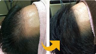 M字から発毛