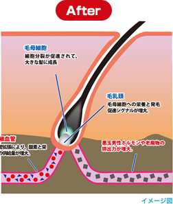 血管拡張After