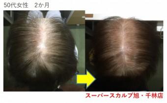 大阪の薄毛治療