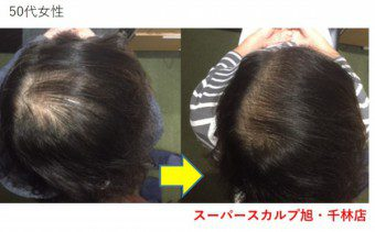 50代女性の薄毛治療実績