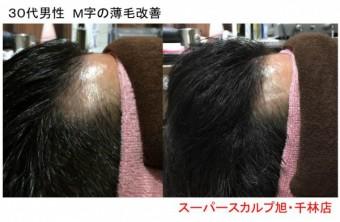 大阪のM字の薄毛改善例