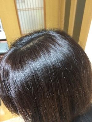 大阪で薄毛治療