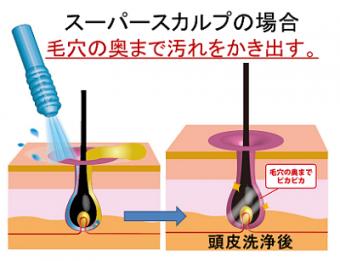 スーパースカルプの頭皮洗浄法