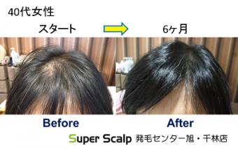 てっぺん薄毛の40代女性、発毛開始前と発毛開始後の薄毛改善