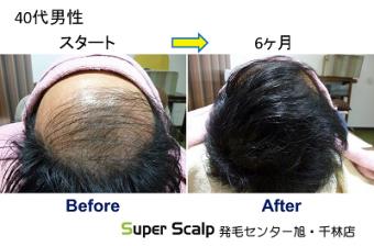 aga40代男性の発毛開始前と発毛開始後の薄毛改善