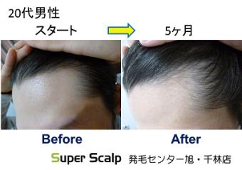 スーパースカルプ発毛療法旭千林店でM字と生え際が気になり来店された20代男性
