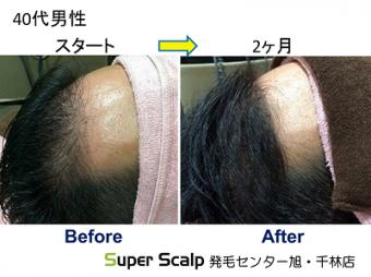 スーパースカルプ発毛療法で生え際が後退してきた 40代男性