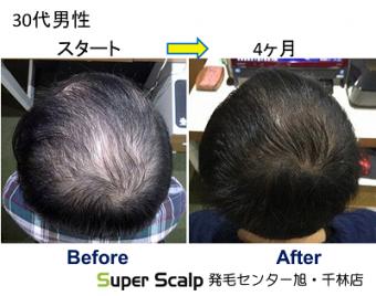 スーパースカルプ発毛療法で7年前からてっぺんの薄毛が気になりだした 30代男性