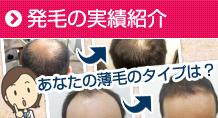 大阪のスーパースカルプ旭千林店でのAGAや女性の薄毛が改善した実績紹介ページ