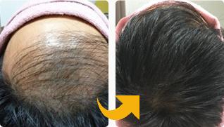 生え際から発毛