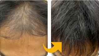 M字軟毛で悩みがあった30代男性