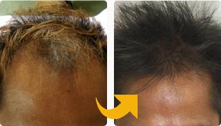 薄毛から生える
