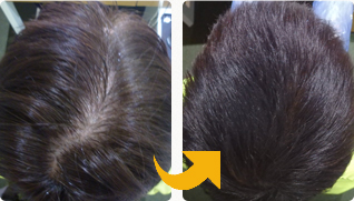 スーパースカルプ旭千林店の薄毛治療で発毛した30代男性