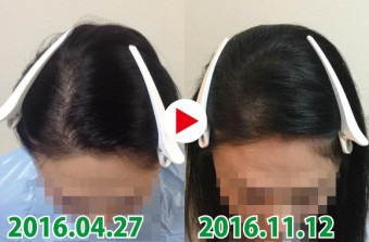藤沢駅南口店の女性の発毛実績