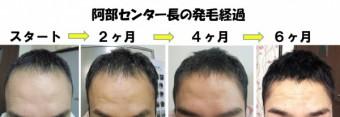スーパースカルプ仙台泉店のセンター長
