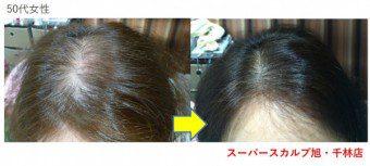 薄毛でお悩みの50代女性の改善例