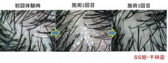 フケと薄毛の関係
