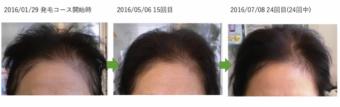 越谷駅東店の女性の薄毛改善例