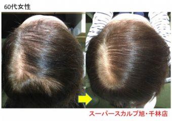 60代女性発毛