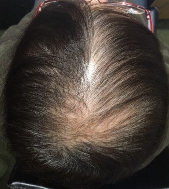 60代女性薬飲まずに薄毛改善
