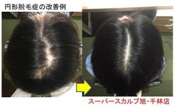 円形脱毛症の女性の薄毛改善例