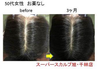 大阪の発毛体験の女性