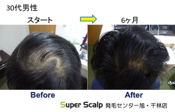 大阪のつむじの薄毛改善