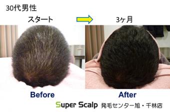 aga30代男性の発毛開始前と発毛開始後の薄毛改善