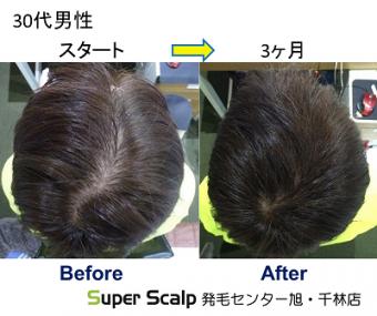 スーパースカルプ発毛療法で友人から髪の毛が薄くなってきたと指摘されて来店された 30代男性